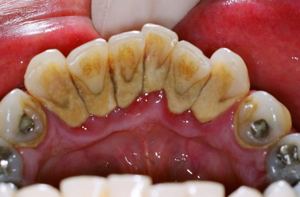Nak Senyuman Secantik Fazura Elak Masalah Karang Gigi Hanya Gunakan