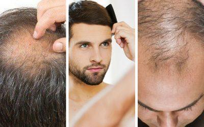 Dah Mula Botak Sebab Rambut Gugur? Ini Tip Mudah Yang Anda Boleh Ikut
