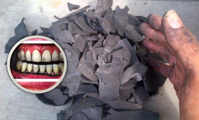 Tip Mudah Untuk Buang Gigi Kuning Dan Berkarat Maskulin