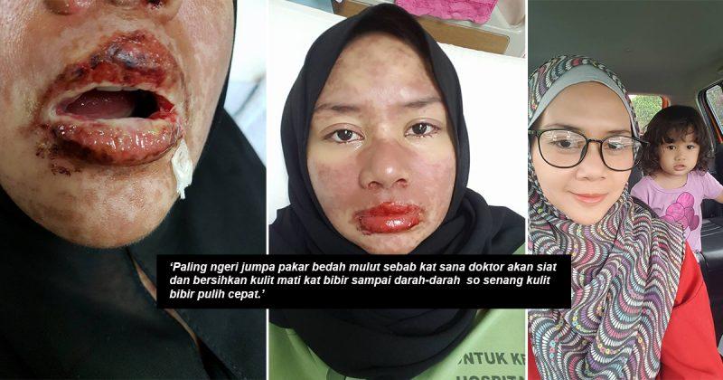 Bermula Dari Sakit Gigi Satu Badan Kemerahan Macam Terbakar, Mulut Penuh Ulser, Bibir Menggelupas. Tak Sangka Ini Yang Dialami Akibat Alahan Ubat!