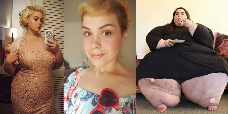 Kisah Transformasi Amber Rachdi, Dulu Obes 300Kg Kini Jadi Gadis Cantik Menawan