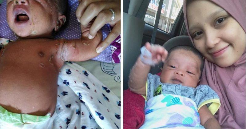Ummi Sampai Sekarang Fobia, Bayi Baru Lahir Antibodi Tak Kuat. Ibu Ini Kongsi Kisah Anak Kena Jangkitan Kulit