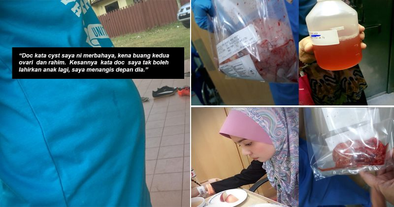 Perut Macam Hamil 4 Bulan Jadi Tanda, Wanita Ini Kongsi Detik Pilu Dibuang Ovari & Rahim Akibat Cyst
